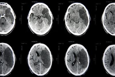 עברת אירוע מוחי? להלן מדריך זכויות רפואיות